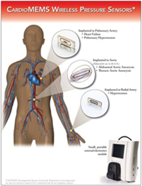 Cardio Memes - cardiomems 38 fewer heart failure hospitalizations
