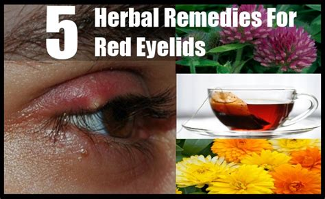 remedies for redness eyelid 5 herbal remedies for