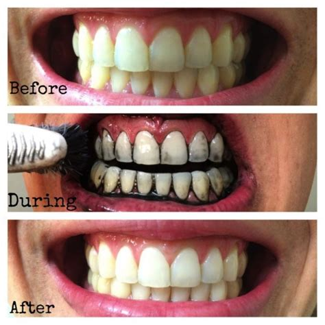 home remedies  naturally whiten  teeth