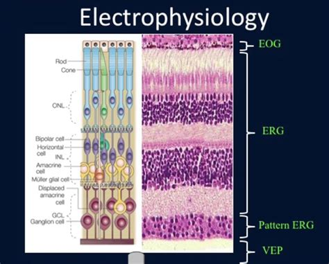 pattern erg office based pattern electroretinography perg