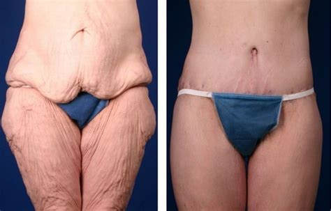 Why Do We Shed Skin by Excess Skin After Bariatric Weight Loss Can Be A Problem