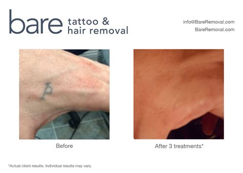 tattoo removal chicago cost greater chicago laser removal 183 bareremoval