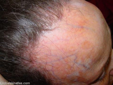 frontal fibrosing alopecia treatment global skin atlas diagnosis detail