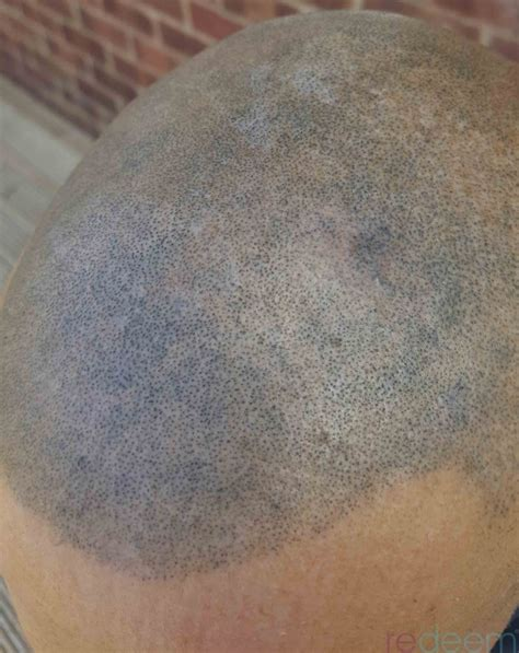 scalp micropigmentation laser removal yorkshire