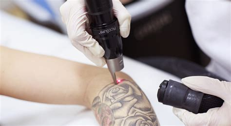 non surgical tattoo removal laser non surgical skin treatment specialist proskin