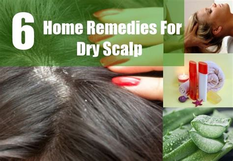 6 how to treat scalp naturally tips to get rid of