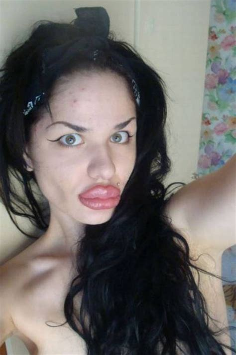 lip implants gone wrong weird lips girl after plastic surgery