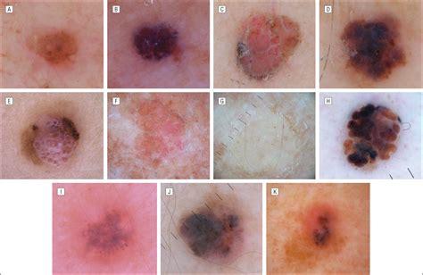 historical clinical  dermoscopic characteristics
