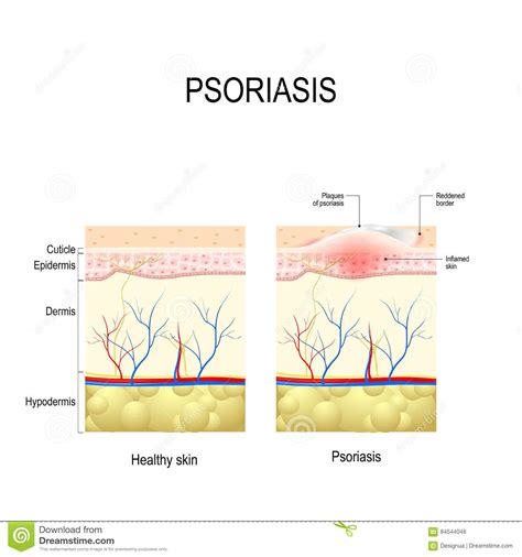 skin layers healthy normal human skin royalty free vector healthy skin up and skin with the plaque psoriasis stock vector image 84544048