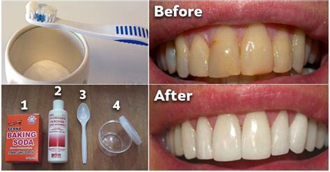 how to get the loss of a how to get rid of plaque and whiten your teeth without expensive treatmentshealth