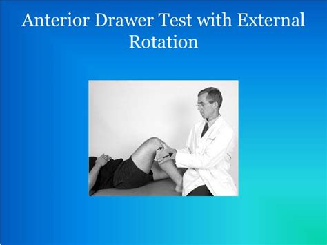 Anterior Drawer by Ppt Medial Collateral Ligament Mcl Tear Powerpoint