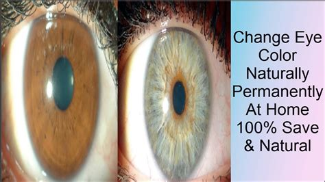 can i change my eye color how to change your color naturally permanently