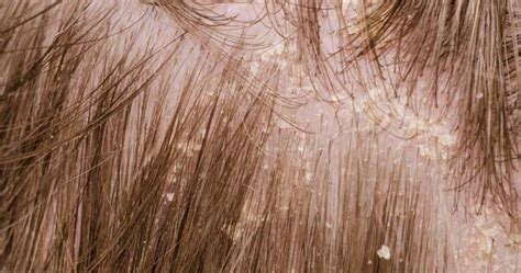 dry scalp and dandruff pictures image gallery scalp dandruff