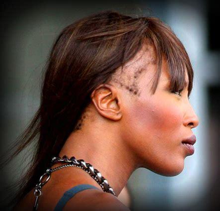 hairstyles for hair loss aroun he edges hair loss beauty pains