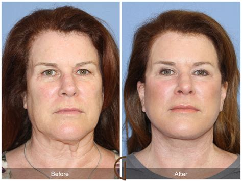 photo gallery before and after cosmetic surgeon in the before after facelift 121 orange county facial plastic