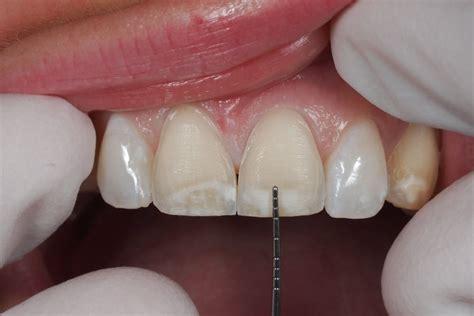 11 best porcelain veneers images crown cement for teeth related keywords suggestions