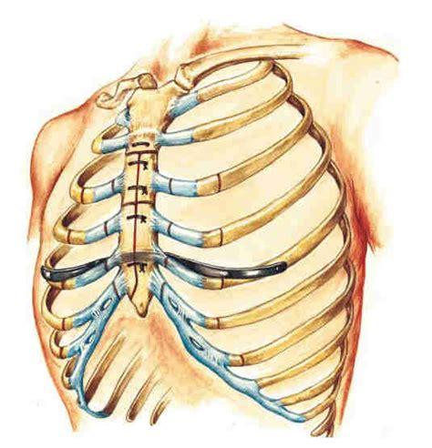dolori alla gabbia toracica pectus excavatum tecniche di correzione medicitalia it