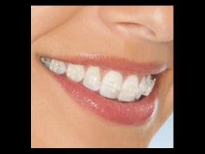 Pembersihan Karang Gigi Di Dental Behel Indonesia Berkualitas 2012
