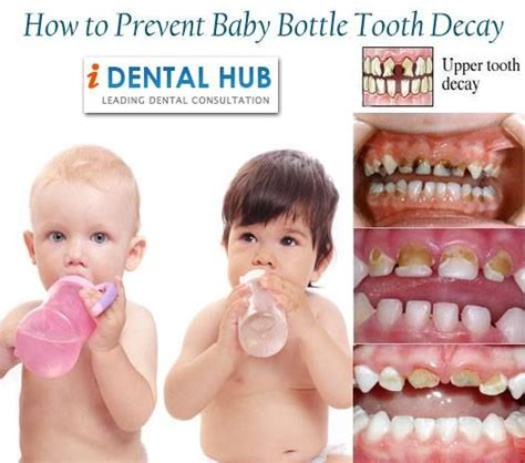 how to stop teeth best 25 baby bottle tooth decay ideas on