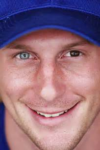 max scherzer eye color heterochromia home
