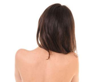 penyebab   mengatasi jerawat  punggung