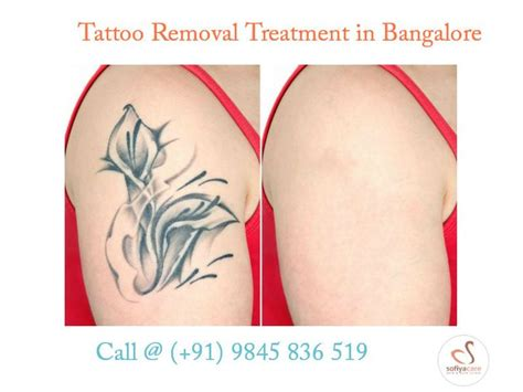 Tattoo Removal Bangalore | best 25 tattoo removal cost ideas on pinterest