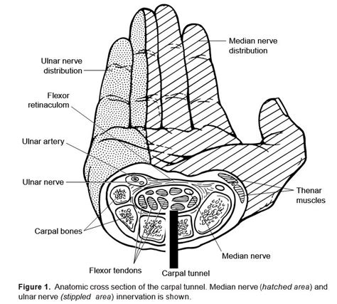carpal tunnel cross section rheumaknowledgy 187 carpal tunnel syndrome