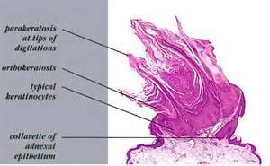 Verruca Plana Pathology Outlines by Pathology Outlines Verruca Vulgaris