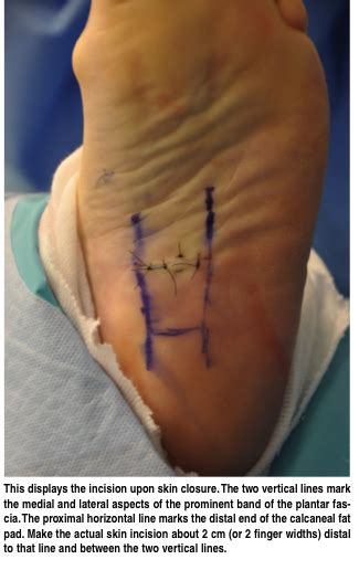 How To Address Complications Of Plantar Fascia Release Planters Fasciitis Surgery