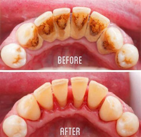 Membersihkan Karang Gigi karang gigi