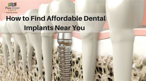 How To Find Near You How To Find Affordable Dental Implants Near You