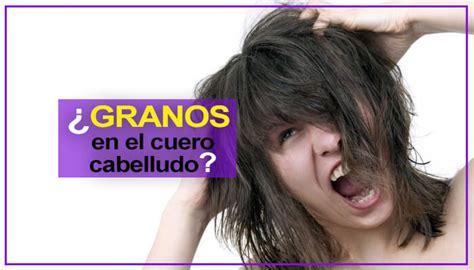 granitos en el cuero cabelludo granos en el cuero cabelludo por qu 233 salen tipos y causas