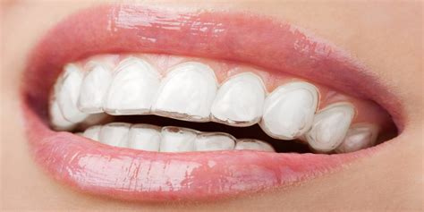 do teeth whitening lights work teeth whitening strip reviews are they worth the effort