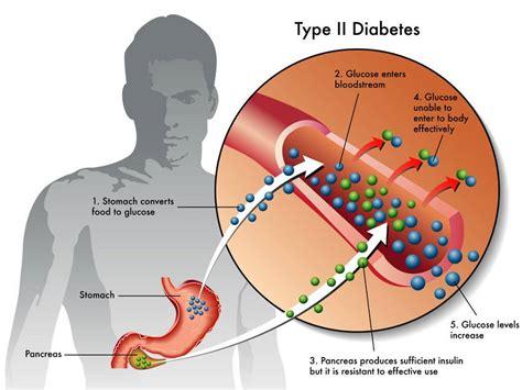 diabetes symptoms early diabetes symptoms you probably didn t about but should