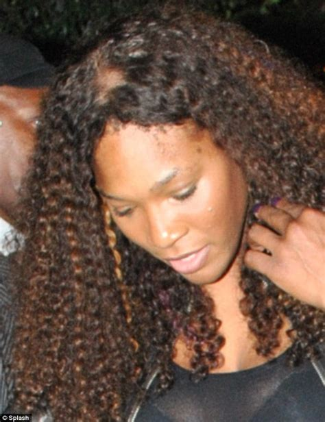 is weave hair good forbald spots why serena just why tennis star displays a bald patch on