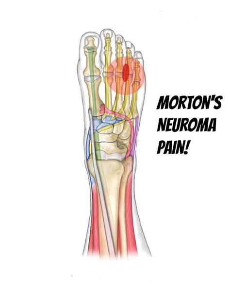Wedges Ab 244 morton s neuroma information stretches and tissue