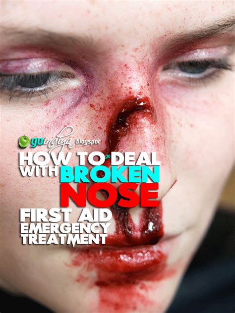 cracked nose treatment how to deal with broken nose aid emergency treatment home remedies