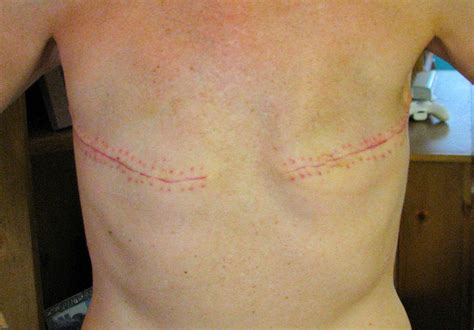 breast reconstruction following mastectomy rocki s rock n blog mastectomy photos without reconstruction