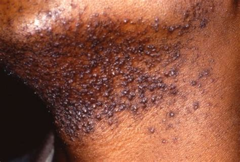 ingrown hair dark spot ingrown hair prevention infection scars pictures cure