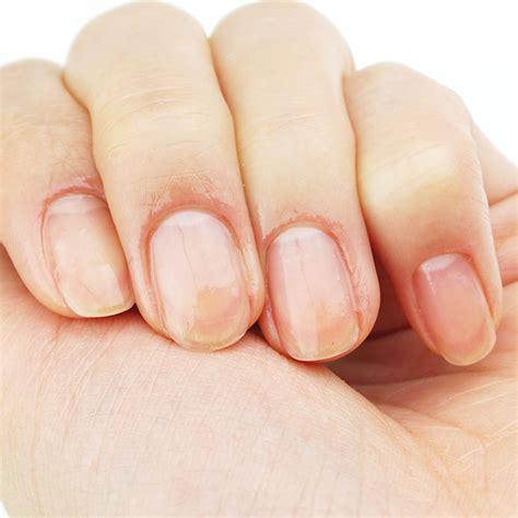 Serum Innisfree innisfree nail serum review
