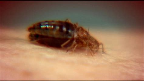 ddt bed bugs bedbugs becoming resistant to more pesticides study finds