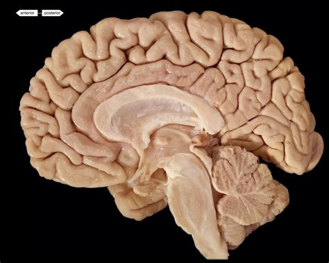 midsagittal section of brain brain midsagittal view no labels
