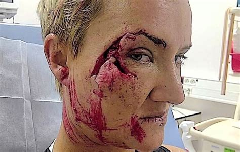 marine repair shop laurie mo keala kennelly severely injured in teahupoo
