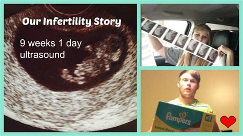 1 week of day our infertility story 9 week 1 day ultrasound