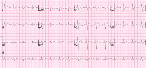 brugada pattern types dr smith s ecg blog brugada pattern induced by tricyclic