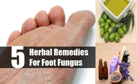 top 5 herbal remedies for foot fungus how to treat foot