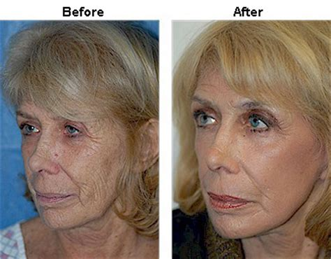 laser wrinkle removal before and after wrinkle removal before and after