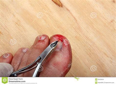 toenail bleeding broken bleeding finger nails stock photo image 39429054
