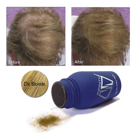 is hair infinity f d a approved 29 best hair loss before after with infinity hair loss