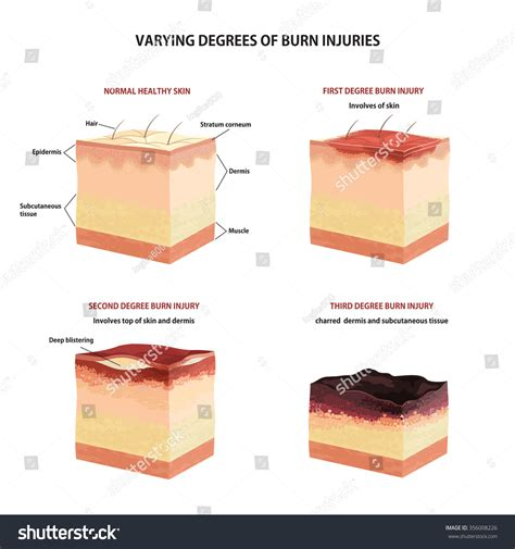 skin burn classification second third stock